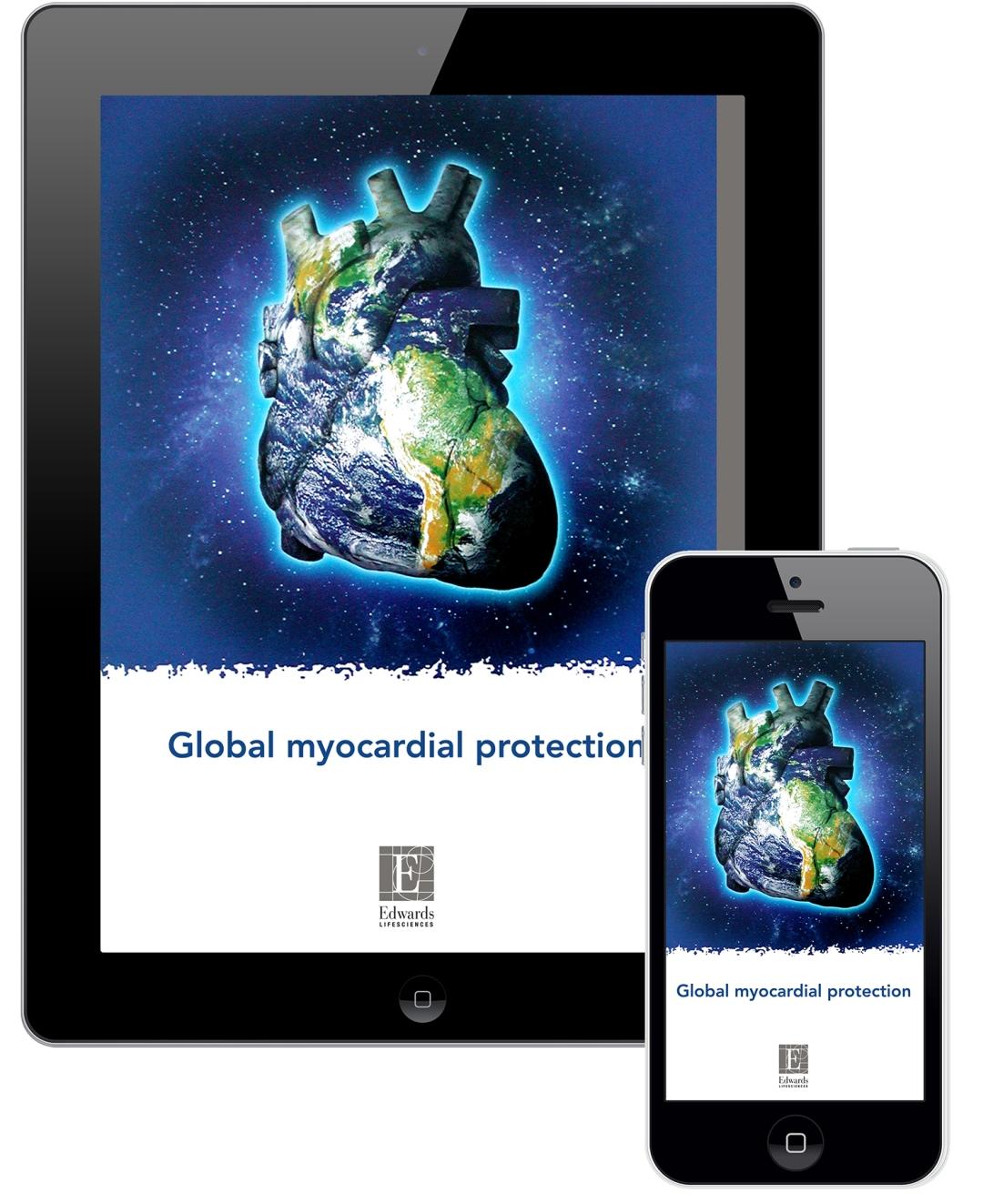 Global myo